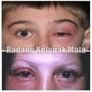 Obat Radang Kelopak Mata (Blefaritis) Tradisional