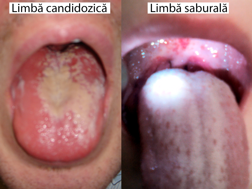 Poze papiloame pe limba