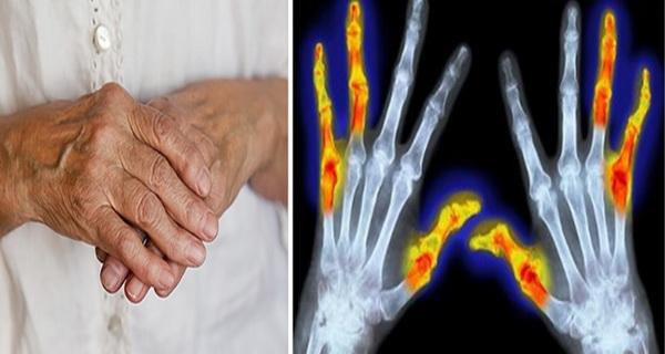 eliminarea durerilor poliartritei cu ulei