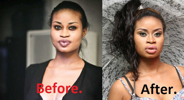 Regina Adeola Plastic surgery