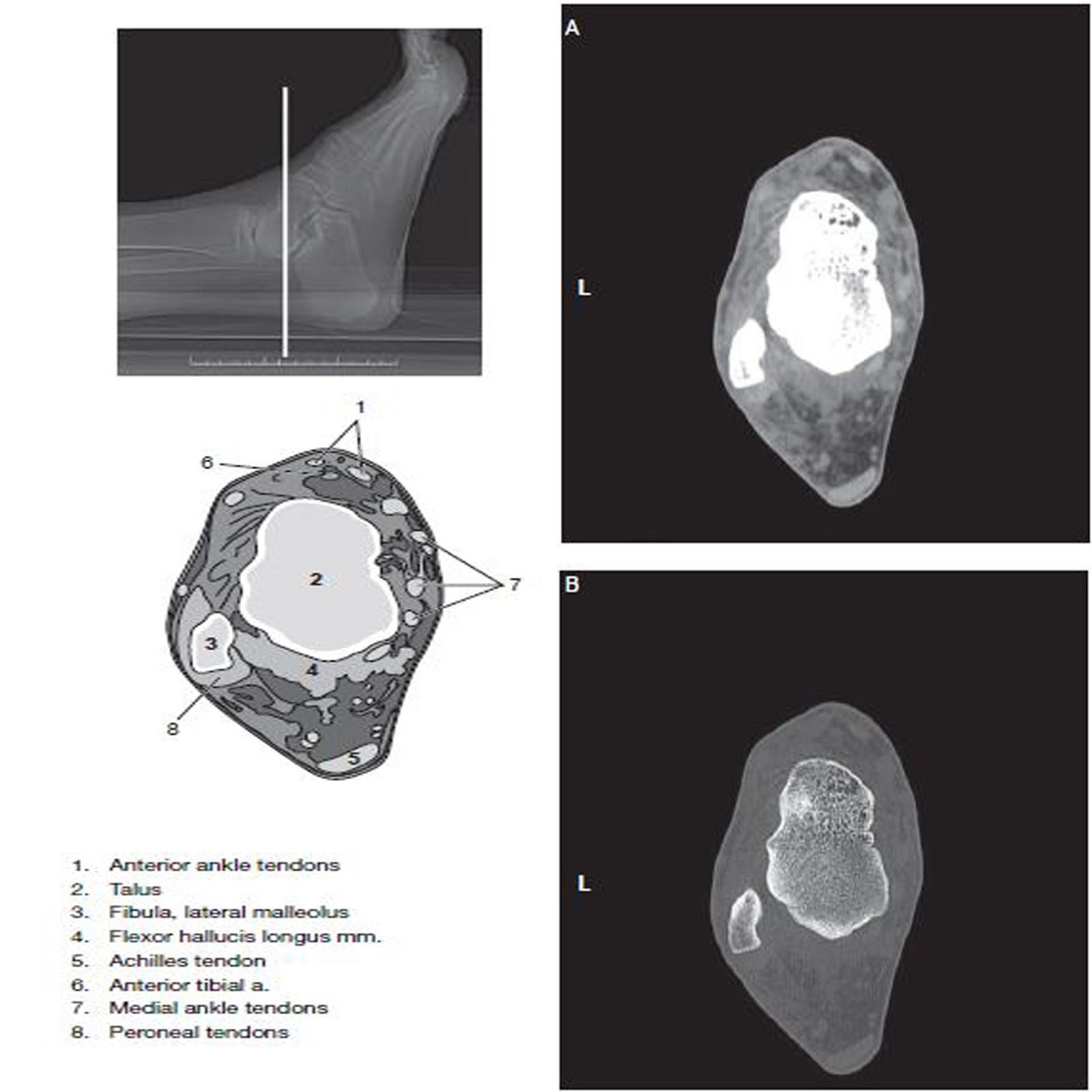 Ankle and Foot - CT Imaging Technique - RadTechOnDuty