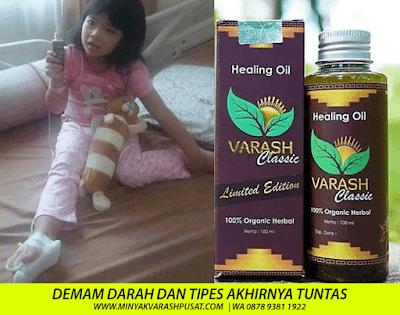Minyak Varash untuk Demam Berdarah DBD