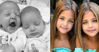 Δίδυμα κοpιτσάκια γεννήθηκαν πριν 8 χρόνια και έγιναν μοντέλα και σήμερα είναι τα ωραιότερα παιδιά του κόσμου