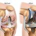 Gejala radang sendi lutut dan biaya operasi tkr nya!