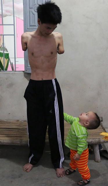 Rơi nước mắt chàng trai bị điện giật mất đôi tay, vợ liền bỏ đi, một mình chăm con thơ khát sữa