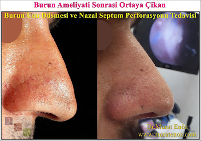 Nasal tip ptosis after septoplasty surgery - Drooping Nose - Nasal tip ptosis - Droopy nasal tip - A drooping nasal tip - Dropped tip after a nose job - Droopy nasal tip thinoplasty - Nasal tip lift with open technique - Nasal tip lifting - Open technique nasal tip lifting in Istanbul - Nose tip lifting in Turkey