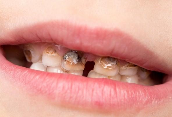 Penyebab Gigi Keropos, Cara Mencegah Dan Cara Mengatasinya