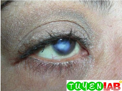 Large corneal scar from previous ulcerations secondary to contact lens use