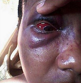 Photos: Woman battered by her husband, sends him a birthday shout out of epic proportions!