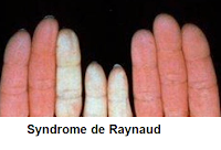 niveau de stress va diminuer améliore le syndrome de raynaud