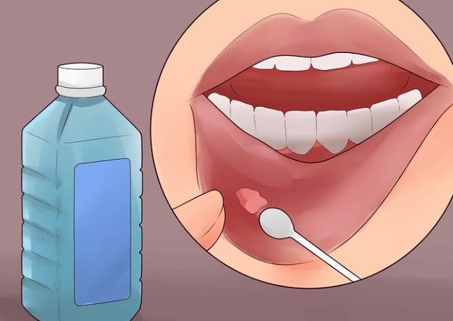 aftele bucale pot fi vindecate cu apa salina si apa oxigenata