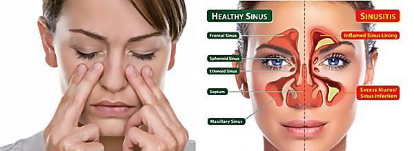 Cara mengatasi penyakit sinusitis
