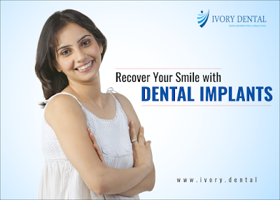 http://ivory.dental/dental-treatments/dental-implants