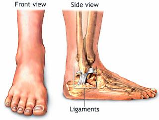 pengobatan cedera robekan tendon pada pergelangan kaki