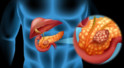 5 Warning Signs That Your Pancreas Is In Danger