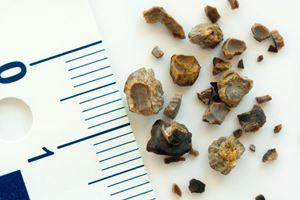 Cara Menghancurkan Batu Ginjal dengan Metode ESWL
