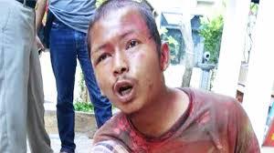 Waduh, Alat Canggih Milik Polisi Tak Mampu Deteksi Identitas Penyerang Kiai di Lamongan