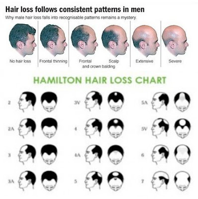 Male Androgenic Hair Loss Pattern