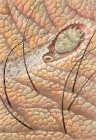 salep Nosib untuk penyakit kulit (gambar ilustrasi masalah kulit)