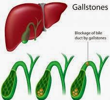 Diet For Gallstones