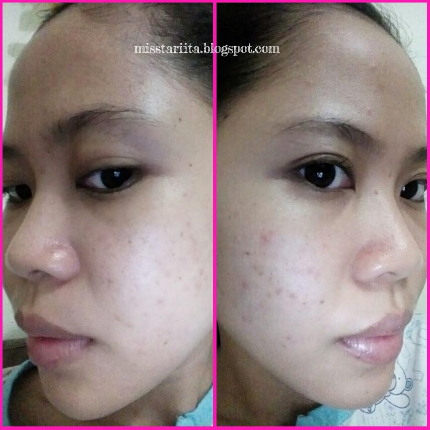 Review Tender Care Si Kecil Penyembuh Jerawat Beauty Blogger Medan Misstariita