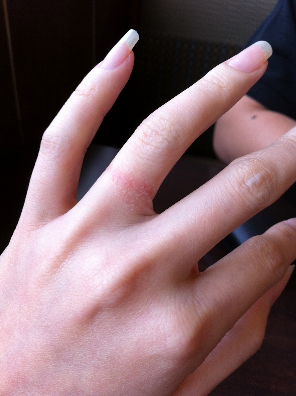 Silver Lining Our wedding band  Allergic Reactions