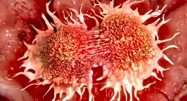 """""""Ο καρκίνος νικήθηκε, στα επόμενα δέκα χρόνια θα είναι μία χρόνια νόσος"""", ανακοίνωσε Έλληνας καθηγητής ογκολογίας"""