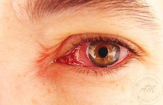 Petua nak hilangkan sakit mata tanpa ubat