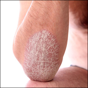 Ayurvedic Treatment of Psoriasis - Dr. Vikram's Blog - Ayurvedic ...