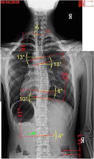 脊椎側彎檢查, 脊椎側彎度數, 脊椎側彎矯正, 脊椎側彎治療, 脊椎側彎矯正運動, 脊椎側彎 物理治療, 脊椎側彎 推薦, 脊椎側彎 台中, 脊椎側彎矯正成功案例