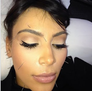 Oh just relaxing! Kim Kardashian gets acupuncture...in the face!