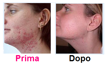 testimonianze-cure-acne-prima-dopo-1