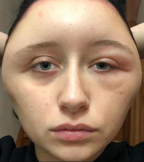 Teenager's head doubles in size after she suffers reaction to a hair dye
