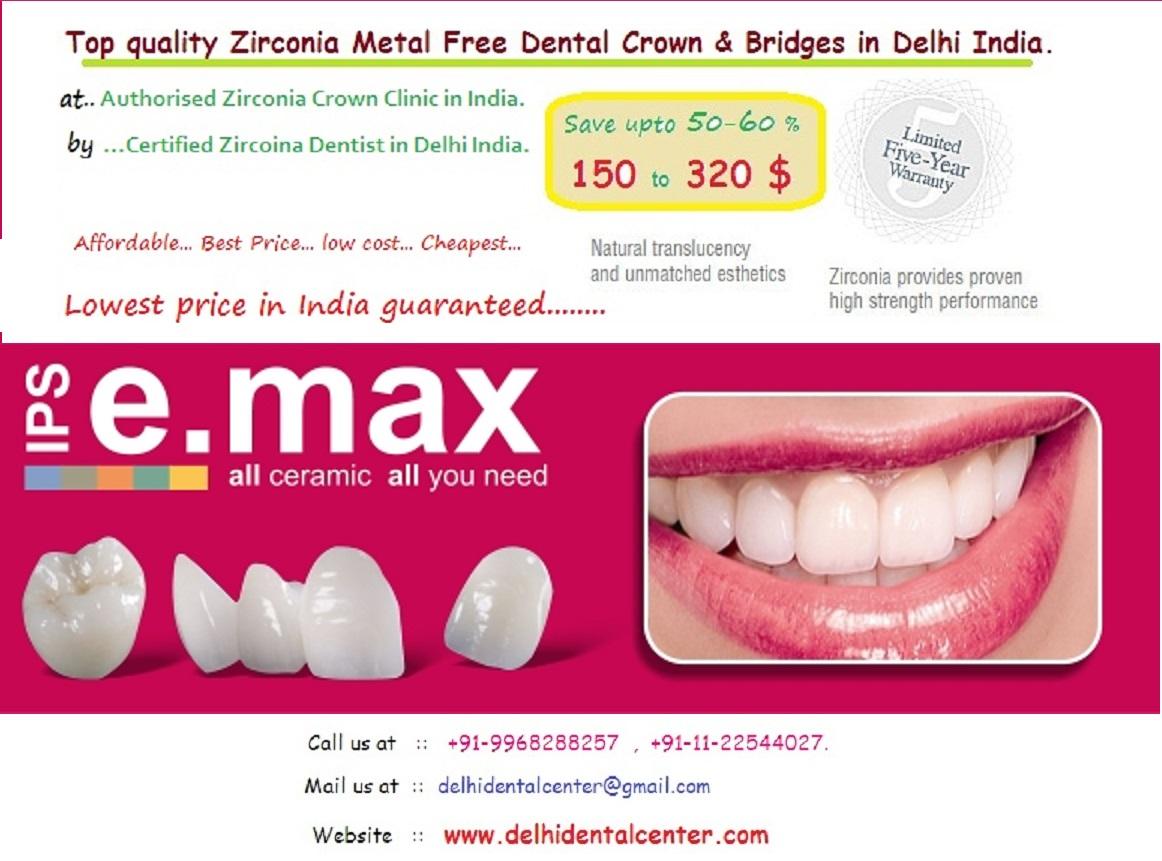 metal free crown price India, ceramic crown cost India