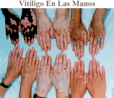 Vitiligo in the hands