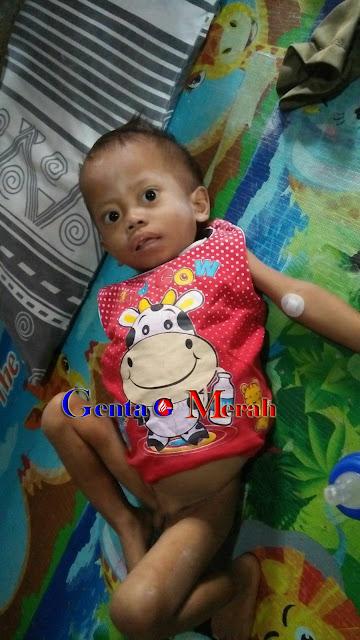 Bocah 3,5 Tahun Telah Yatim Piatu di Lamteng Alami Gizbur, Butuh Uluran Tangan Donatur