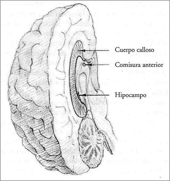 El blog del gran Uribe: El cuerpo calloso del cerebro de Trump