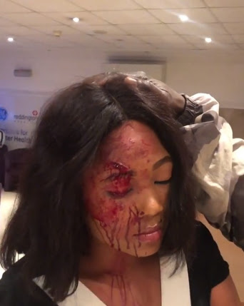 See Pretty Lady Mercilessly Beaten & Robbed By Taxify Driver In Lagos