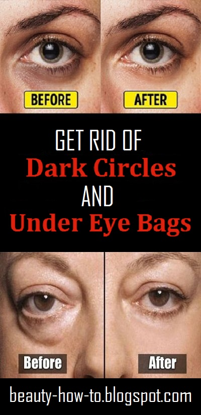 How to get rid of Dark Circles and Under Eye Bags - How To ...