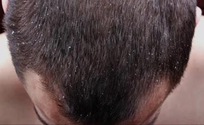 وصفة سحرية لتخلص من قشرة الرأس