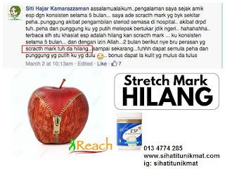 cara mengatasi stretchmark
