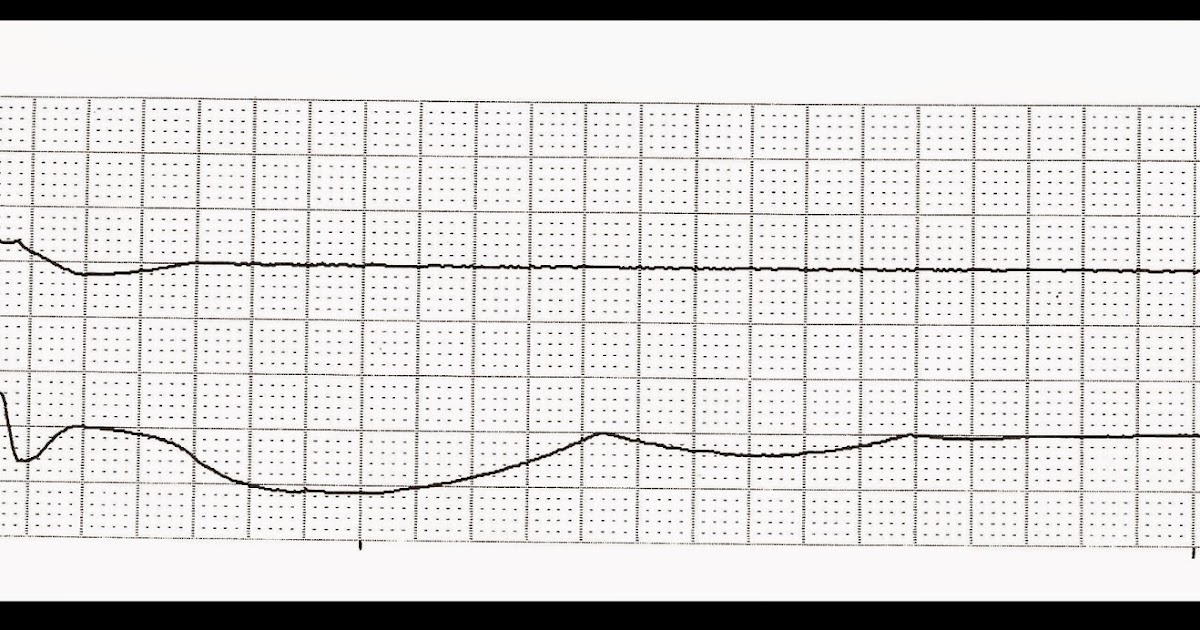Float Nurse: Practice EKG Strips 407