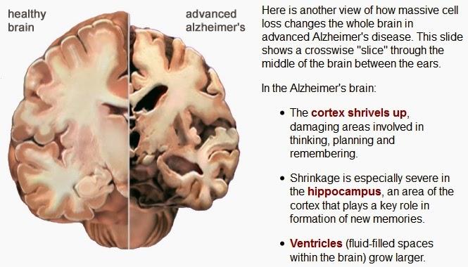 relationship between brain changes and behaviour in dementia