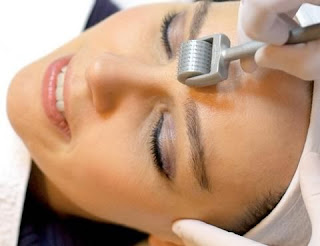 All You Need to Know about Hypertrophic Acne Scar Removal