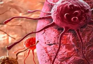 sel kanker - cancer