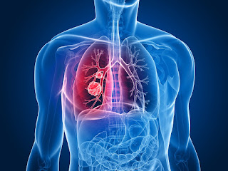 Treatment Options Available For Mesothelioma
