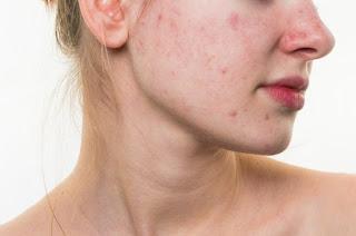 Obat Cream Penghilang Bekas Jerawat Membandel & Fek Hitam Ampuh