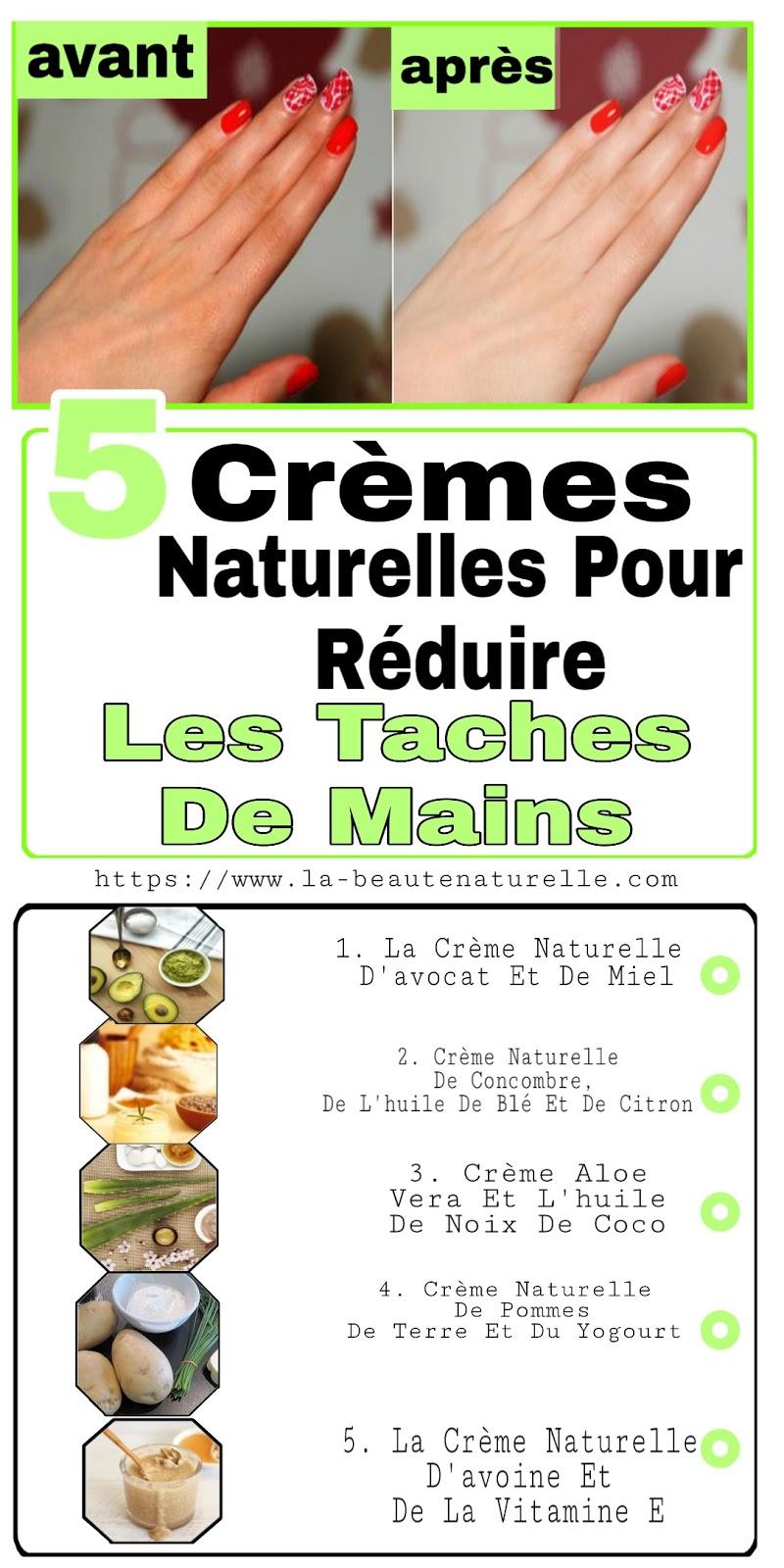 5 Crèmes Naturelles Pour Réduire Les Taches De Mains