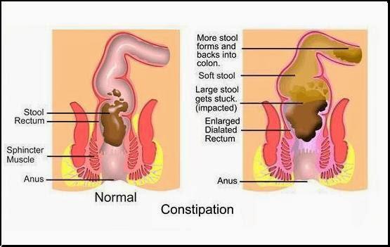 Aloe Vera for Health&Beauty: Chronic Constipation ...