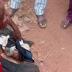 Hmm..Fulani Killer Herdsman Cut Off Farmers Hand, Ear In Kogi [GRAPHIC PHOTO]